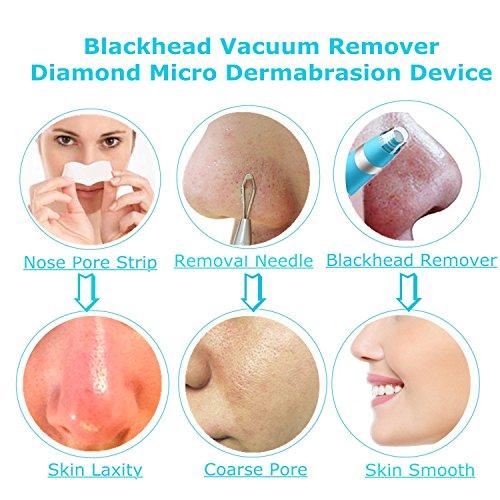 Eliminador de puntos negros, Limpiador de Poros, Removedor de Espinillas, Electrónico Blackhead Remover para Cuidado Piel Personal, 6 Sondas