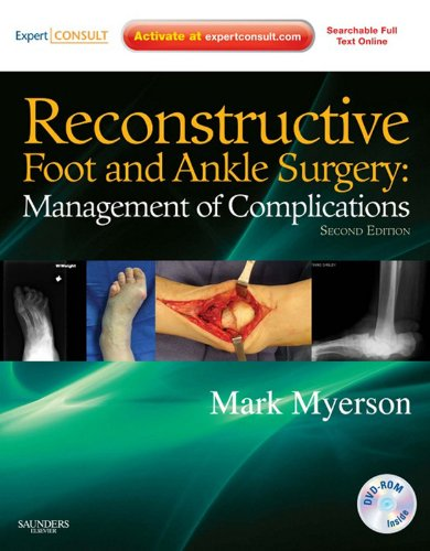 SD - Reconstructive Foot and Ankle Surgery: Management of Complications E-Book: Expert Consult - Online, Print, and DVD (English Edition) Division Dome