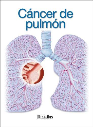 Miniatlas Cáncer de pulmón