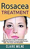Rosacea Treatments Review and Comparison