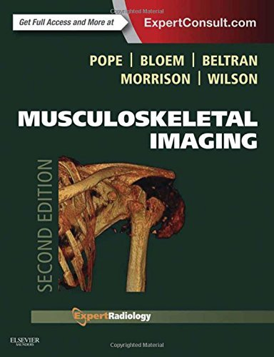 Musculoskeletal Imaging, 2e (Expert Radiology) by Thomas Pope MD FACR (2014-11-04)