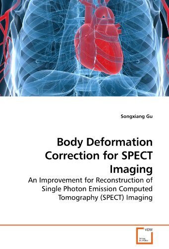 Body Deformation Correction for SPECT Imaging: An Improvement for Reconstruction of Single Photon Emission Computed Tomography (SPECT) Imaging