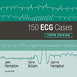 150 Ecg Problems 4th Edition Pdf