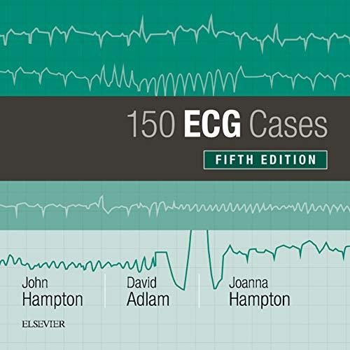 150 Ecg Cases (150 Ecg Problems) por John Hampton epub