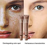 World Beauty's Hot Sale Skin Care Age Spot Melasma Remove Freckle Face Cream