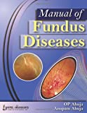 Manual Of Fundus Diseases