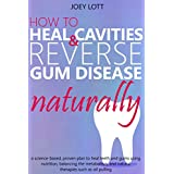 You Can Heal Your Teeth and Gums NaturallyNot only is it scientifically-proven that you can heal cavities and reverse gum disease. It doesn't have to be complicated or difficult either.In this book, author Joey Lott, takes you on a journey of discove...