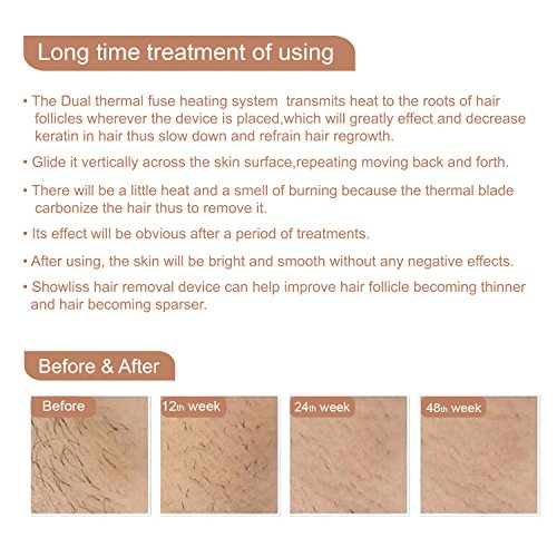 Hair Removal Machine, Hair Removal with Dual Thermal Fuse Heating System (Golden)