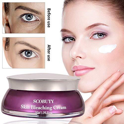 Whitening Cream, Altersflecken Creme, Flecken Creme, Sommersprossen Entfernen, New Anti Melasma Dark Age Spots Sommersprossen Entferner Lightening Face Cream-30g -