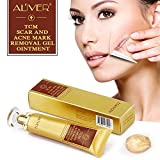 TCM Scar and Acne Marks Removal Cream Skin Repair Scars Burns Cuts Pregnancy