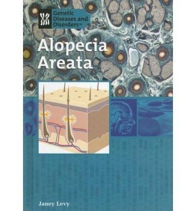 [(Alopecia Areata )] [Author: Janey Levy] [Aug-2006]
