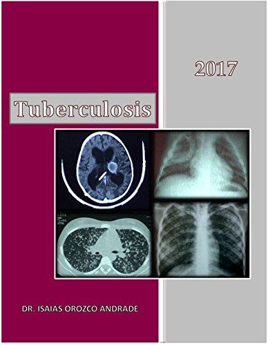Tuberculosis 2017: Edición en español (Spanish Edition)