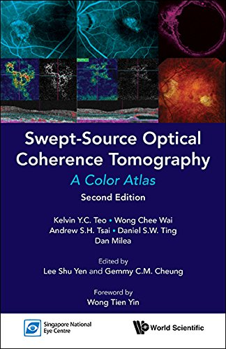 Swept-Source Optical Coherence Tomography:A Color Atlas