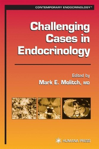 Challenging Cases in Endocrinology (Contemporary Endocrinology) (2002-01-18)