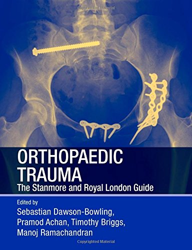 Orthopaedic Trauma: The Stanmore and Royal London Guide