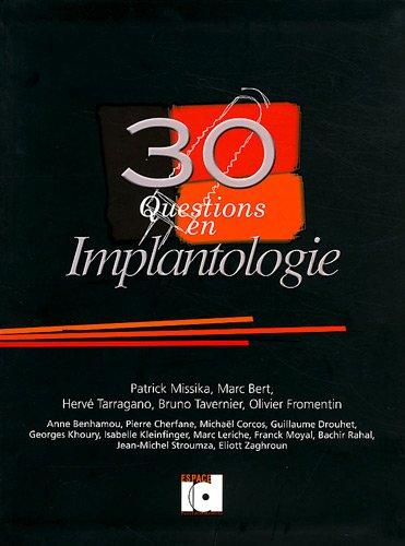30 Questions en implantologie