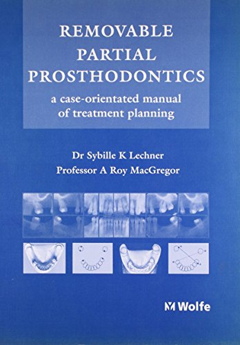Removable Partial Prosthodontics: A Case Oriented Manual of Treatment Planning