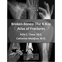 Broken Bones: The X-Ray Atlas of Fractures (English Edition)