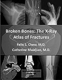 Broken Bones: The X-Ray Atlas of Fractures