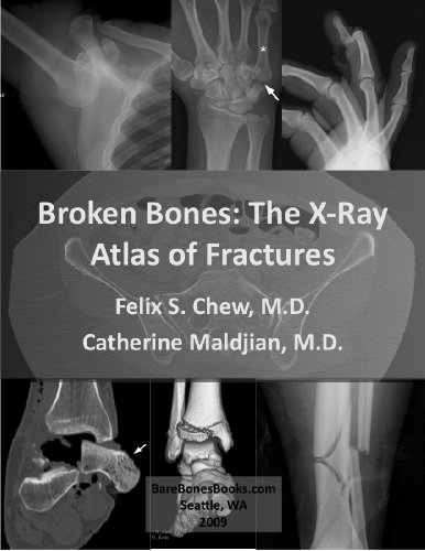 Broken Bones: The X-Ray Atlas of Fractures (English Edition)