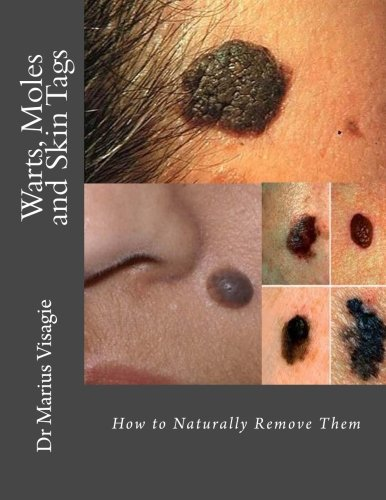 Price comparison product image Warts,  Moles and Skin Tags: How to Naturally Remove Them