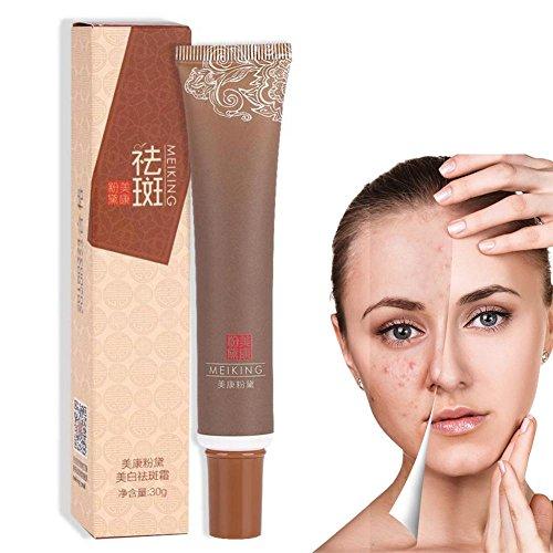 Gesichtspflege Creme, entfernen Freckle Sunburn Speckle Creme verblassen dunkle Fleck Melanin Whitening Feuchtigkeitscreme -
