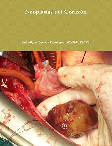 Neoplasias del Corazón