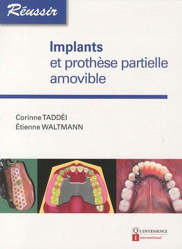 Implants et prothèse partielle amovible par Corinne Taddéi, Etienne Waltmann