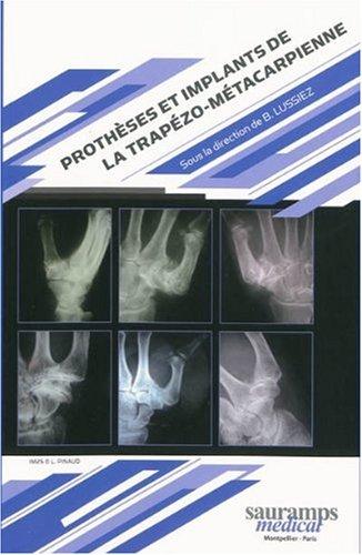 Prothèses et implants de la trapézo-métacarpienne