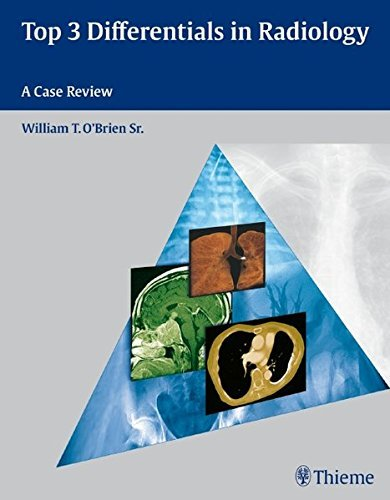 Top 3 Differentials in Radiology by William O'Brien (2009-11-18)