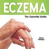 Eczema - The Essential Guide
