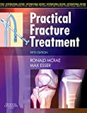 #2: Practical Fracture Treatment, International Edition