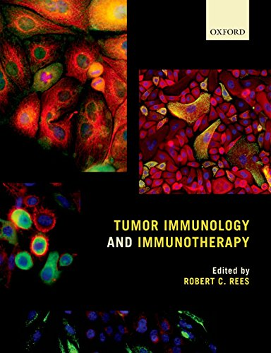 Tumor Immunology and Immunotherapy (English Edition)