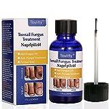 Best Nail Fungus Treatments - Fungus Stop, Nail Fungus Treatment, Anti Fungus Nail Review