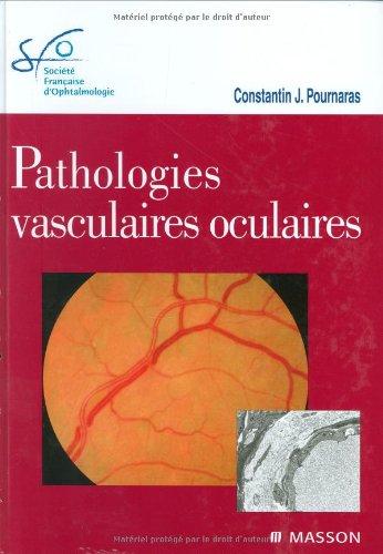 Pathologies vasculaires oculaires: Rapport SFO 2008