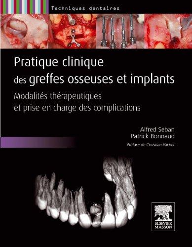Pratique clinique des greffes osseuses et implants: Modalités thérapeutiques et prise en charge des complications