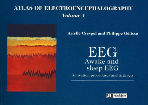Atlas of Electrencephalography : Volume 1, EEG Awake and sleep EEG