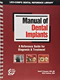 Manual of Dental Implants: 0