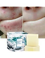 Savon au sel de mer naturel au lait de chèvre, ROMANTIC BEAR cicatrices de points noirs et d'acné savon anti-cellulite, visage pour peaux sèches et grasses naturelles (100G)
