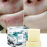 Savon au sel de mer naturel au lait de chèvre, ROMANTIC BEAR cicatrices de points noirs et d'acné savon anti-cellulite, visage pour peaux sèches et grasses naturelles (100G)...