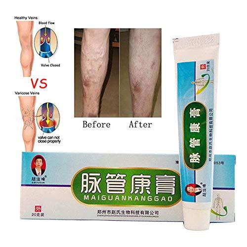 Pawaca Krampfadern Behandlung Creme, Relief & Remove das Auftreten von Phlebitis Angiitis Entzündung Blutgefäß Spider Veins Salbe, 20g