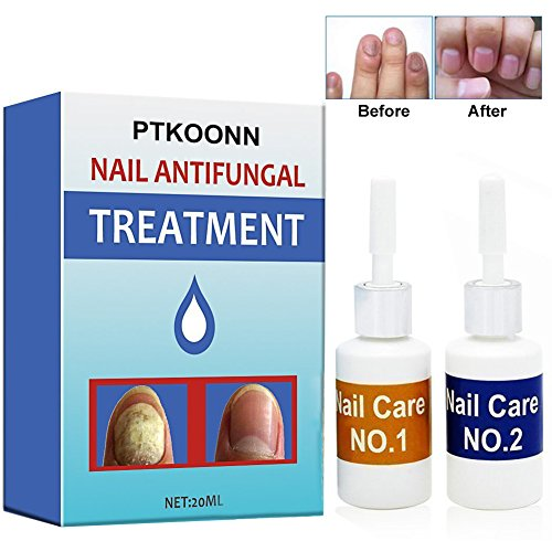Nagelpilz Öl,Pilz Nagel Behandlung,Anti-Pilz,Zehennagel-Pilz-Behandlung,Natürliche Anti-Pilz-Lösung,Pilz-Halt,Nagelhautöl Nail Treatment für Zehennägel,2 Stück