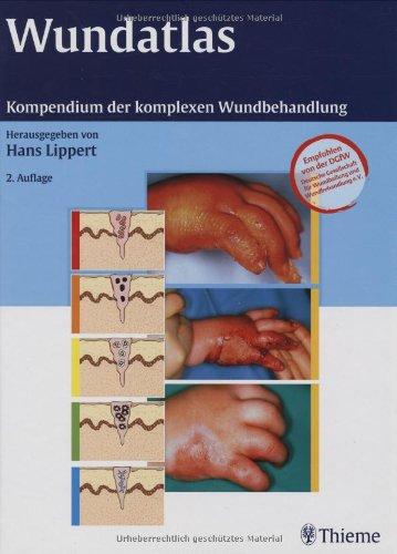 wundatlas-kompendium-der-komplexen-wundbehandlung
