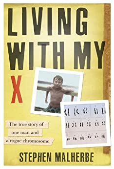 Living with my X (English Edition) di [Malherbe, Stephen]