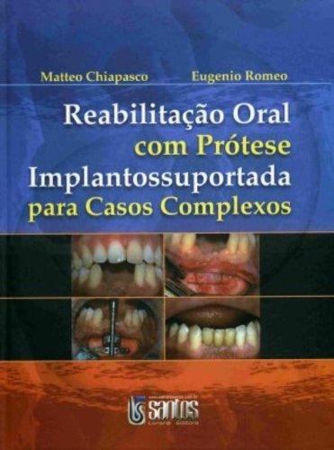 Reabilitao Oral Com Prtese Implantossuportada Para Casos Complexos (Em Portuguese do Brasil)