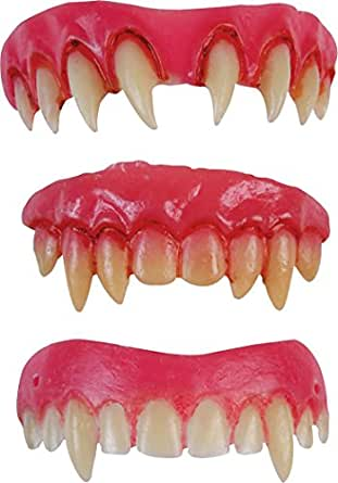 Vampire Dental Veneers