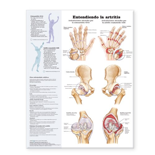 Understanding Arthritis Anatomical Chart in Spanish (Entendiendo La Artritis)