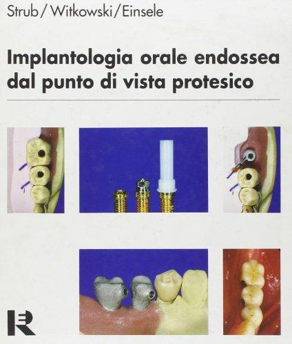 Implantologia orale endossea dal punto di vista protesico