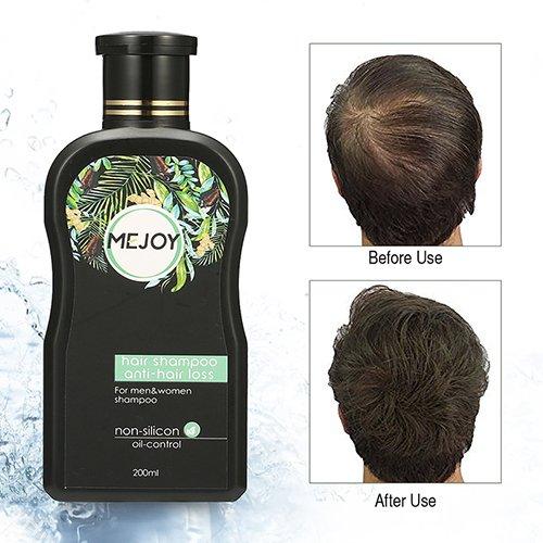 Anti-Haar-Shampoo, LuckyFine Anti-Haar-Verlust-Shampoo gegen Haarausfall Haar schützen