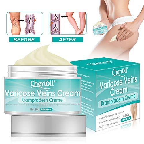 Krampfadern Creme, Varicose Veins, Relief Phlebitis Angiitis Entzündung Blutgefäß Venen Vaskulitis Behandlung Beine Care Safe Cream, sanften Beinpflege